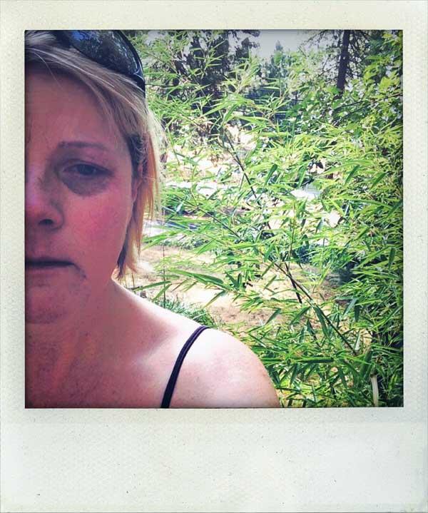 Moira-McLaughlin-Cancer-Selfie-600
